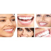 $39 For 2 Consecutive 20 Minute Wavelight Teeth Whitening Treatments ($ Value)